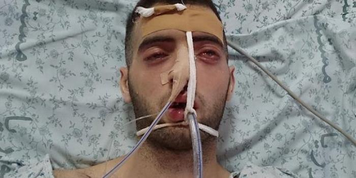 The health of Ja'far Awad (22 years old) started to deteriorate after being jailed in Israeli jails, where they tested drugs on him, causing him a series of complications that led to his death within three months.